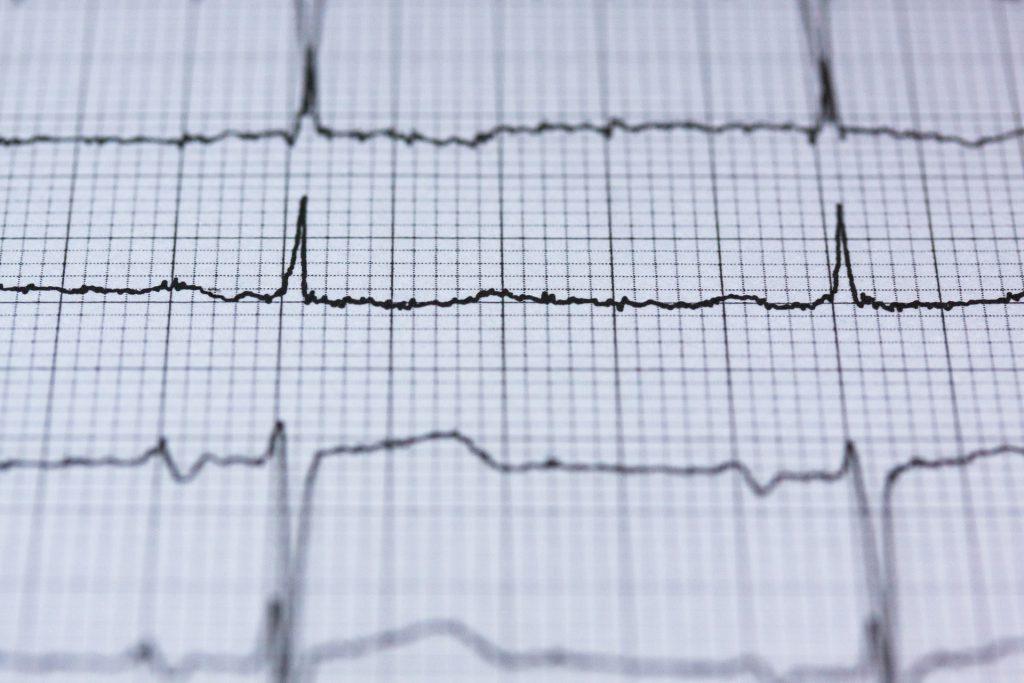 badanie EEG wynik