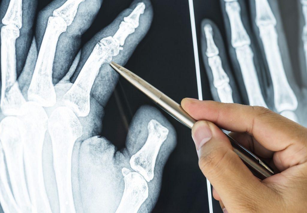 złamany palec